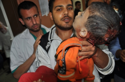 Gaza, Child wounded in an Israeli attack Photo by Safa Nov 16, 2012