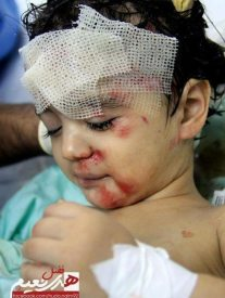 nov-17-2012-gaza-under-attack-child-wounded