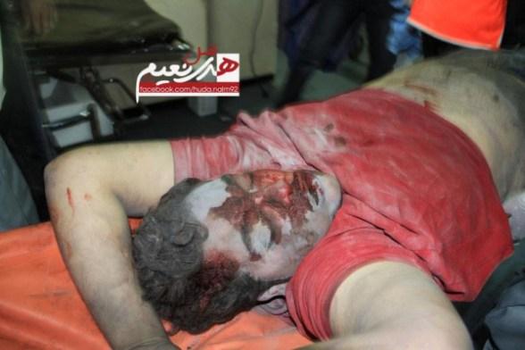 Martyr Abdullah Al-Muzanar, died minutes ago after bombing Al- dalw Residence