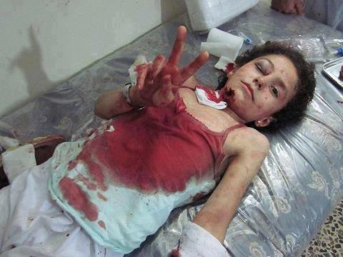 """""""Amal""""(Hope) the name of this Gazan girl who is injured but still has Hope for victory - Photo via @Yasmin_Gaza"""