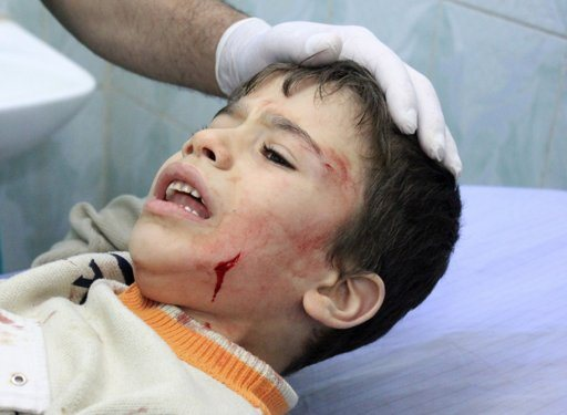 """A wounded Palestinian boy reacts as he receives treatment in a hospital after an Israeli air strike in the northern Gaza Strip November 18, 2012. Israel bombed militant targets in Gaza for a fifth straight day on Sunday, launching aerial and naval attacks as its military prepared for a possible ground invasion, though Egypt saw """"some indications"""" of a truce ahead. REUTERS/Stringer"""
