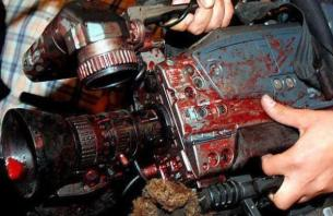 Gaza Under Attack from Israel :: 21 November 2012 ,photo cameras covered with blood after press was attacked by israel
